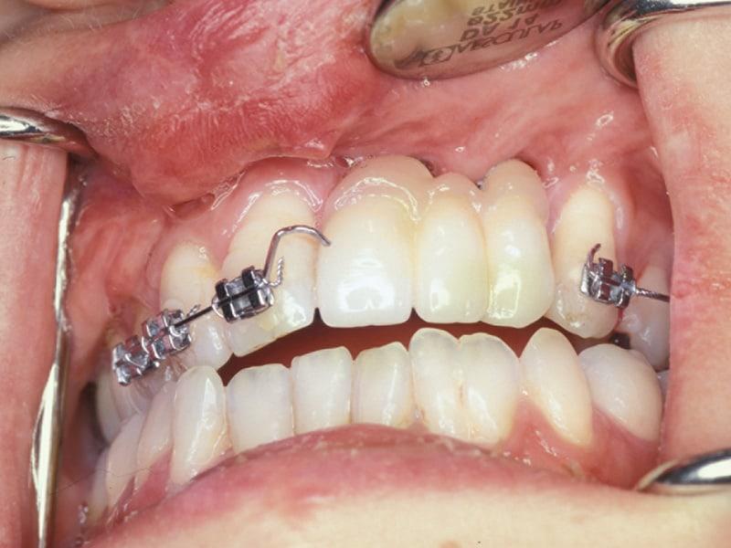 Aufwendige Prothetik, komplizierte Defekt-Situation bei Lippen-Kiefer-Gaumenspalte, Implantat