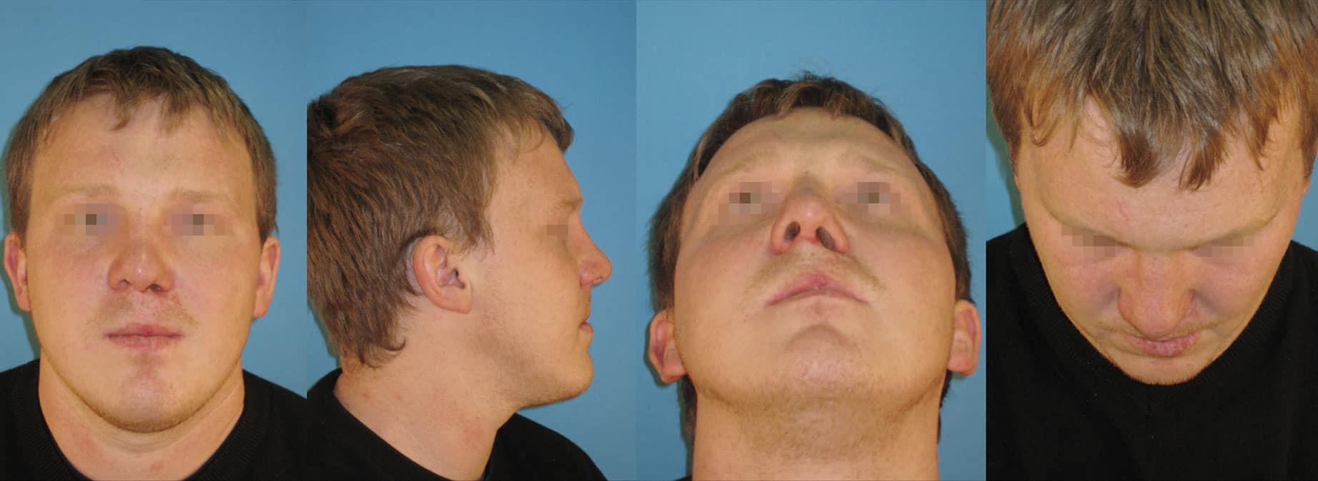 Rhinoplastik, Ästhetische Nasenkorrekturen, Spaltnasenkorrekturen