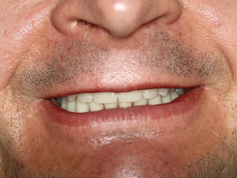 Implantatrehabilitation, Zahnimplantate, Prothesen