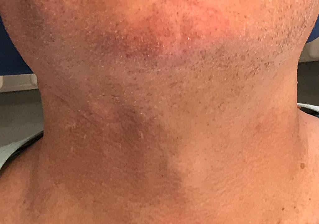 Unauffällige Narbenbildung und Schnittführung, nach Operation am Hals