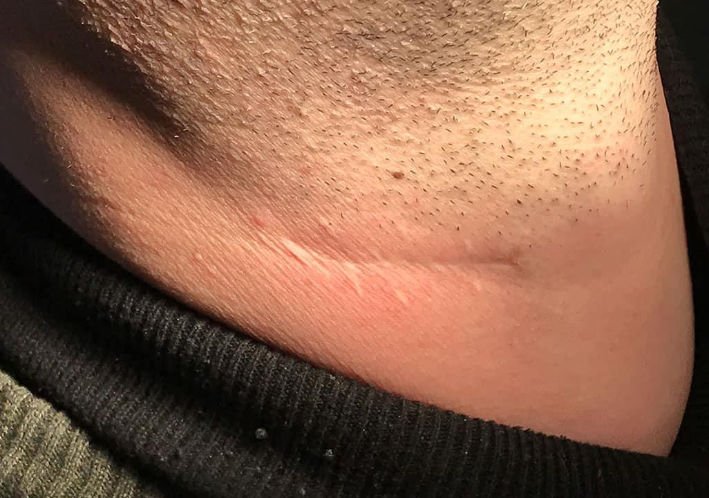 Unauffällige Narbenbildung und Schnittführung, nach Operation am Hals nach Halslymphknotendissektion