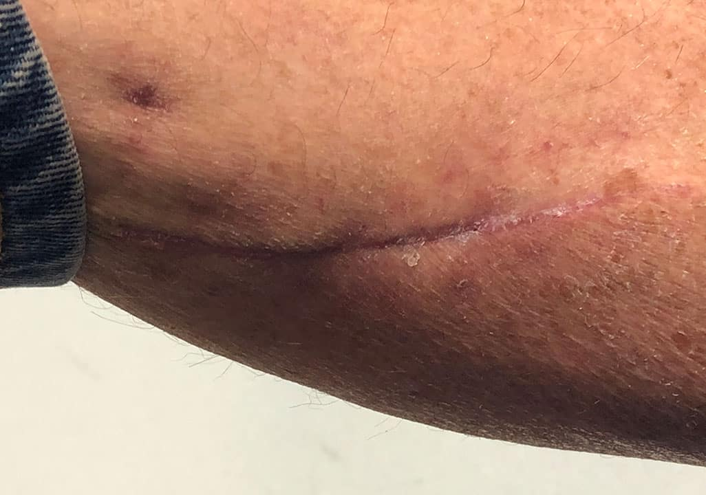 Unauffällige Narbenbildung und Schnittführung, nach Operation am Unterschenkel (Entnahme eines medial sural artery perforator flap MSAPF)