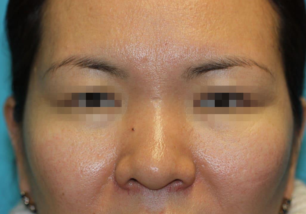 Blepharoplastik, Lidkorrektur und Lidstraffung, Schlaffe Augenringe