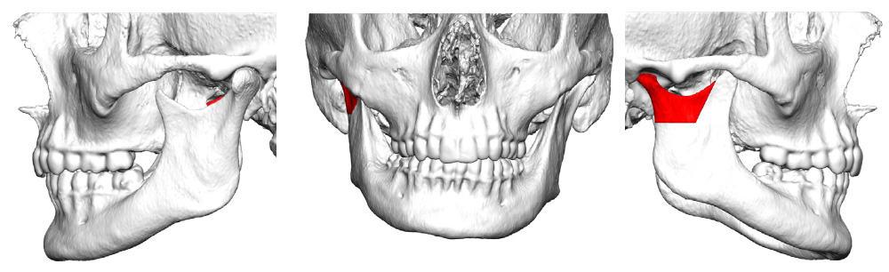 Virtuelle Planung eines Kiefergelenkersatz, Gelenkchirurgie, Prothese, Implantat