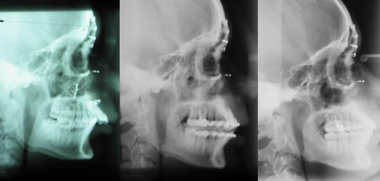 Detaillierte Rekonstruktion nach komplexer traumatischer Mittelgesichts-Frakturen