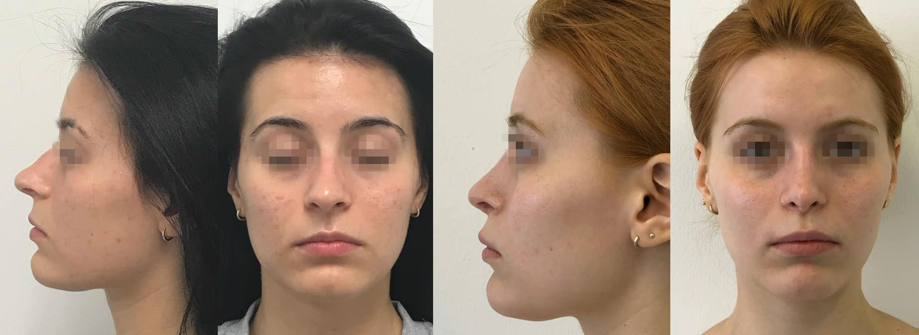 Rhinoplastik, Ästhetische Nasenkorrektur, plastische Operation