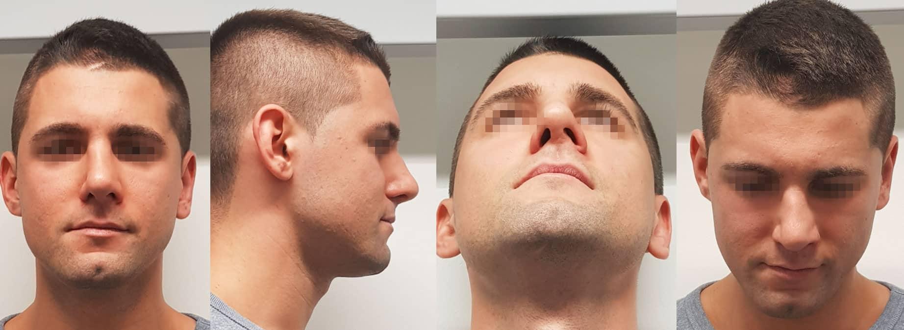 Traumatische Schiefnase, Septorhinoplastik der inneren und äußeren Nase