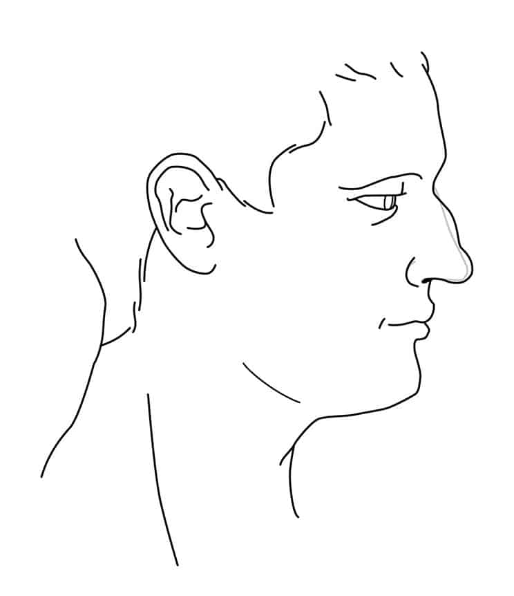 Profilgrafik Korrektur eines Nasnehoecker