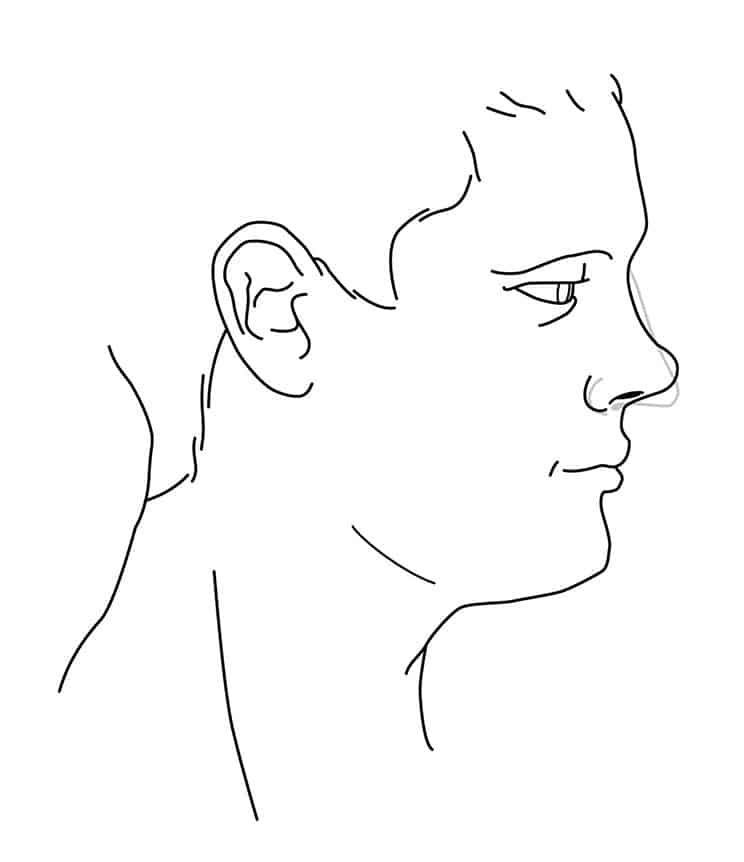 Profilgrafik Korrektur der Stupsnase