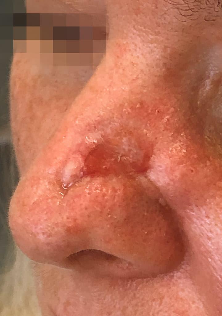 Nasenrekonstruktion, kleiner freier Lappen,Behandlung eines extraoralen Tumors an der Nase