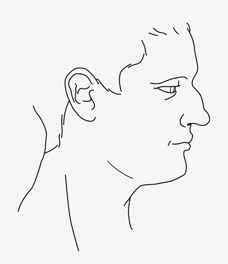 Profilgrafik eines Nasenhoecker