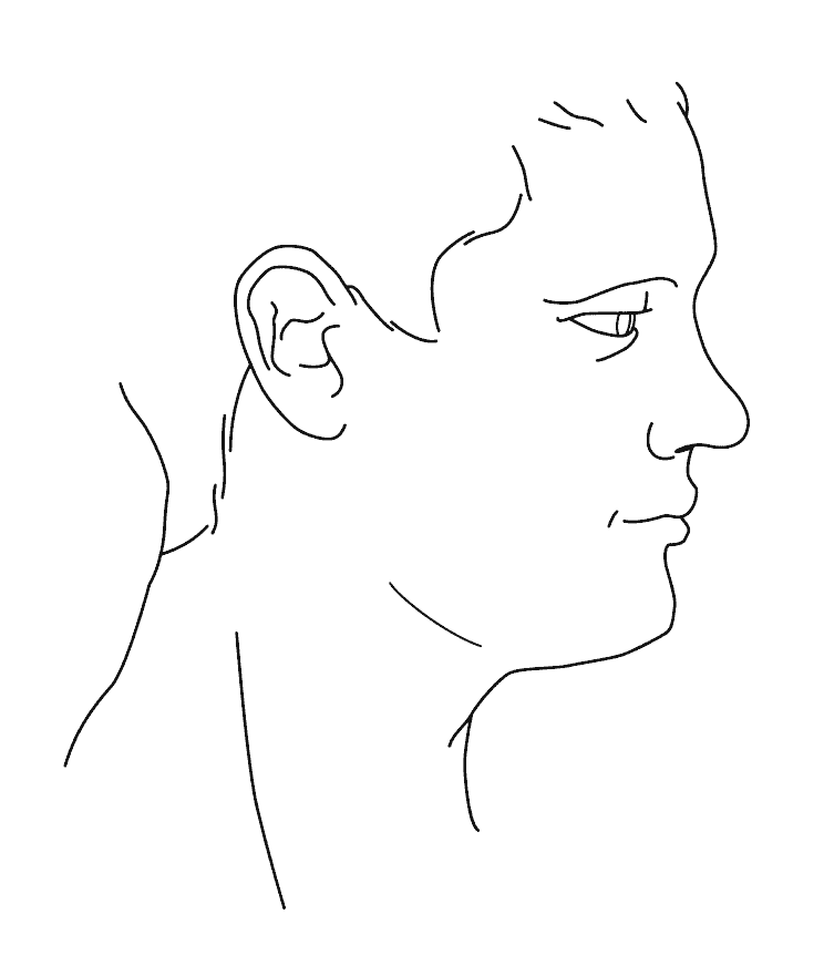 Profilgrafik der Sattelnase